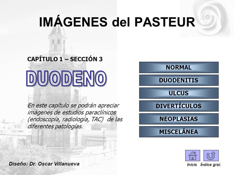 IMÁGENES del PASTEUR CAPÍTULO 3 Sección I: ANATOMÍA NORMAL Indice Inicio Duodeno