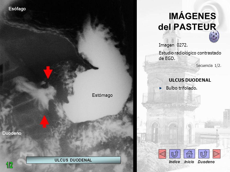 IMÁGENES del PASTEUR Imagen 0273.Estudio radiológico contrastado de EGD.