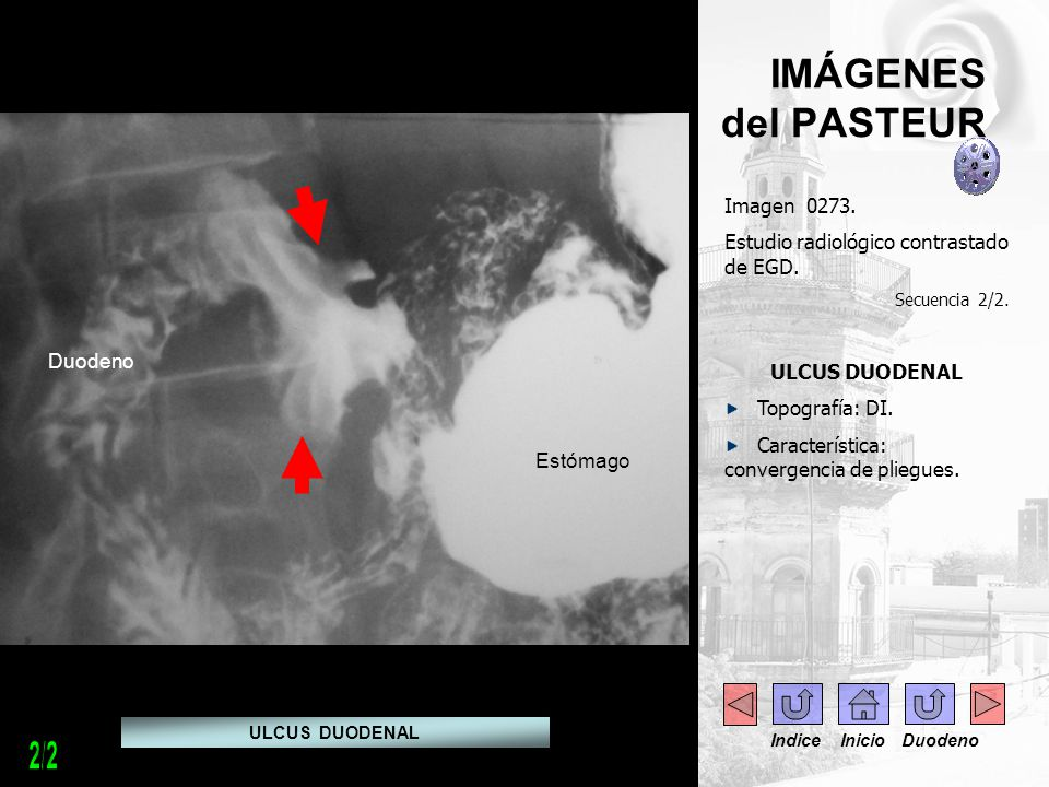 IMÁGENES del PASTEUR Imagen 0274.FGDC – duodenoscopía.