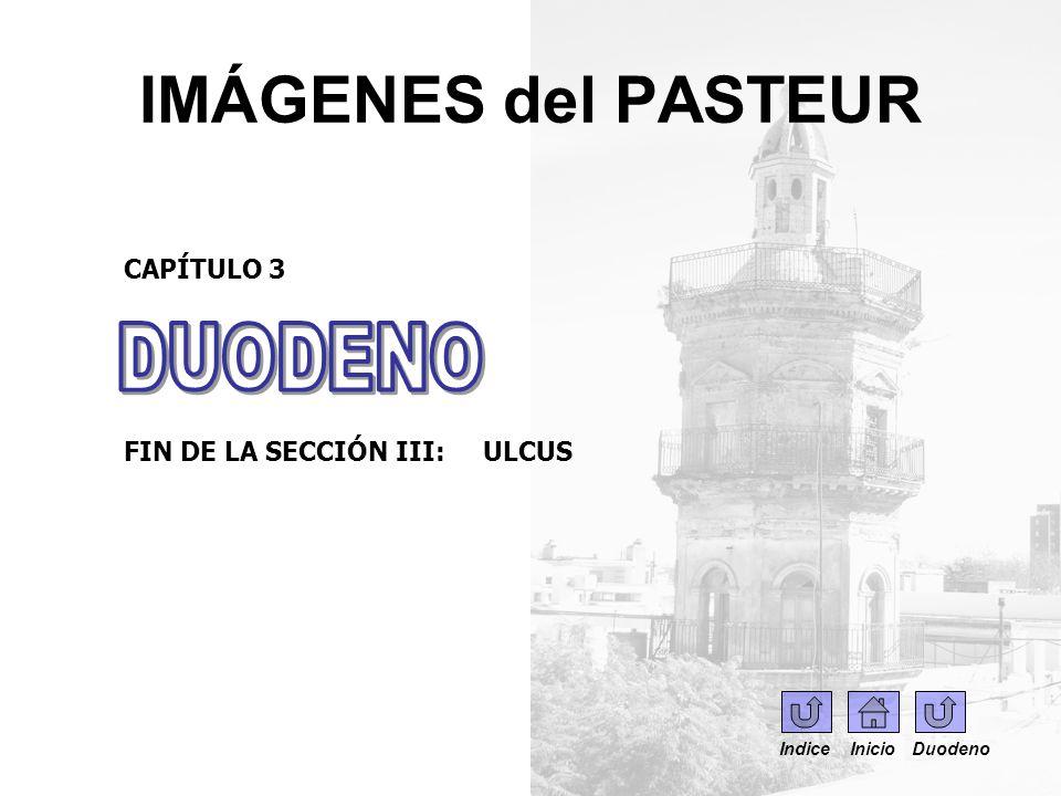 IMÁGENES del PASTEUR CAPÍTULO 3 Sección IV: DIVERTÍCULOS Indice Inicio Duodeno