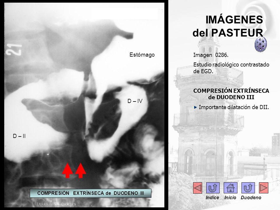 IMÁGENES del PASTEUR Imagen 0287.Radiografía simple de abdomen.