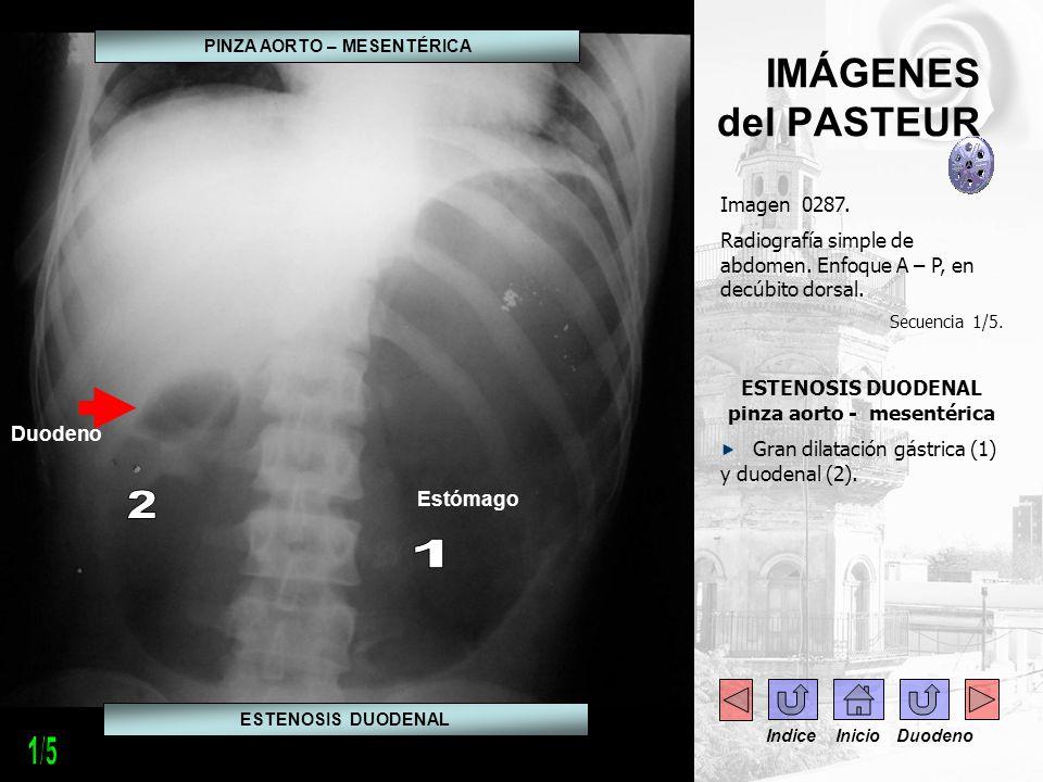 IMÁGENES del PASTEUR Imagen 0288.Radiografía simple de abdomen.