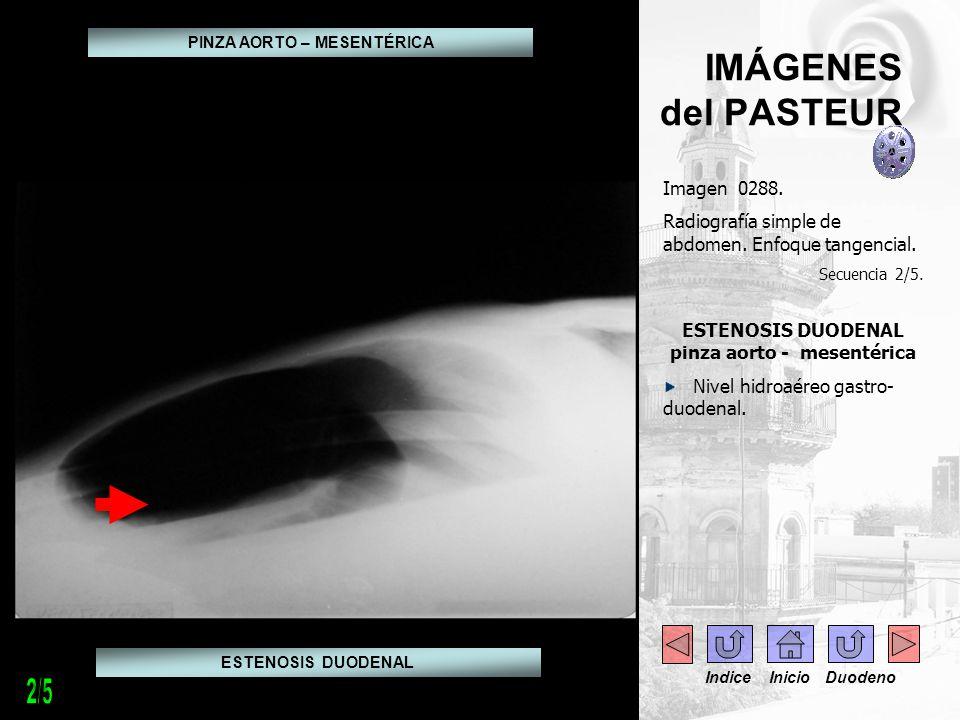 IMÁGENES del PASTEUR Imagen 0289.TAC abdomen. Secuencia 3/5.