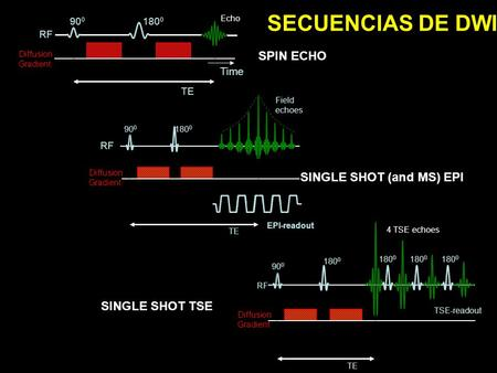 SECUENCIAS DE DWI SPIN ECHO SINGLE SHOT (and MS) EPI SINGLE SHOT TSE
