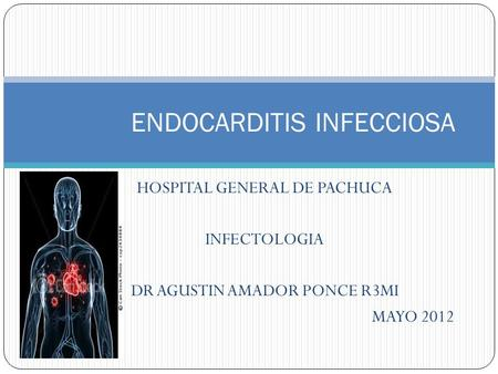 HOSPITAL GENERAL DE PACHUCA INFECTOLOGIA DR AGUSTIN AMADOR PONCE R3MI MAYO 2012 ENDOCARDITIS INFECCIOSA.