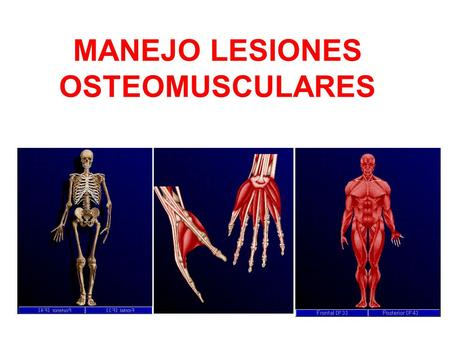 MANEJO LESIONES OSTEOMUSCULARES