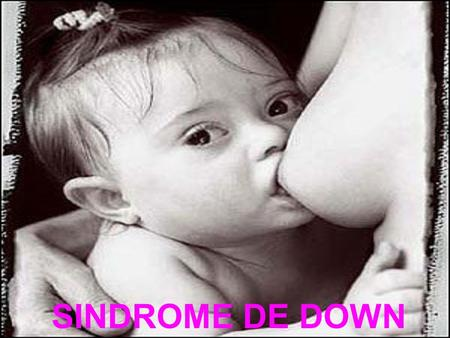 SINDROME DE DOWN.