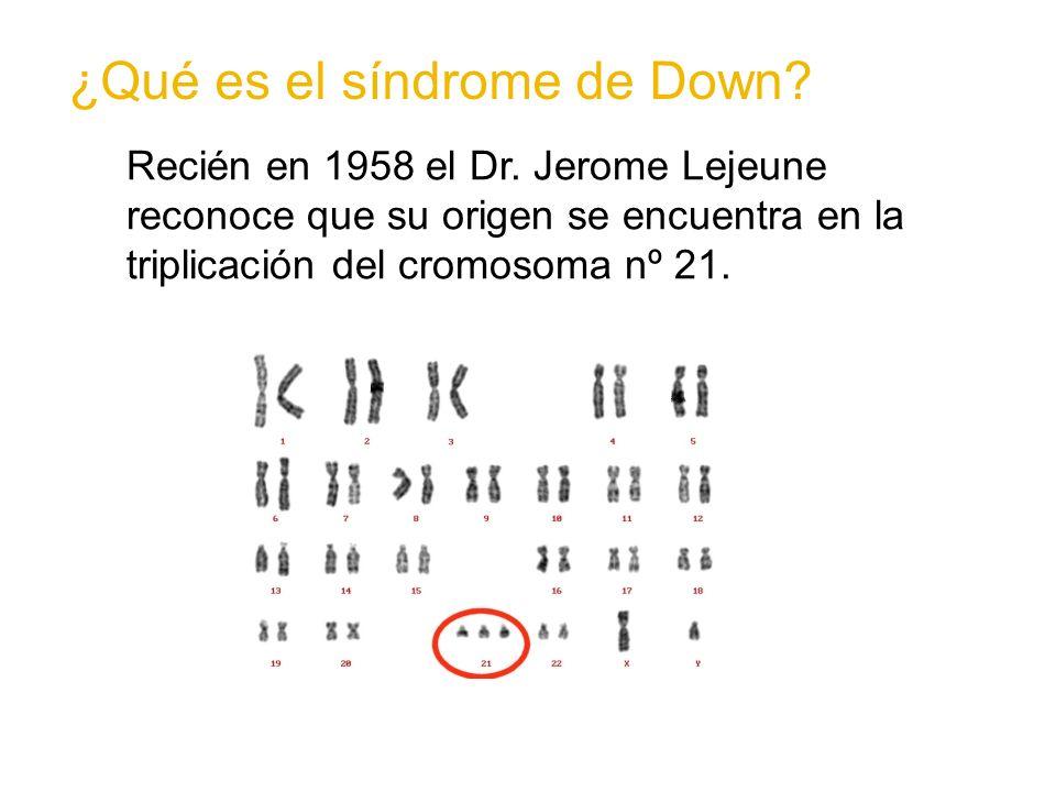 Se estima que en Chile aproximadamente 1 de cada 400 nacimientos corresponde a un bebé con síndrome de Down.