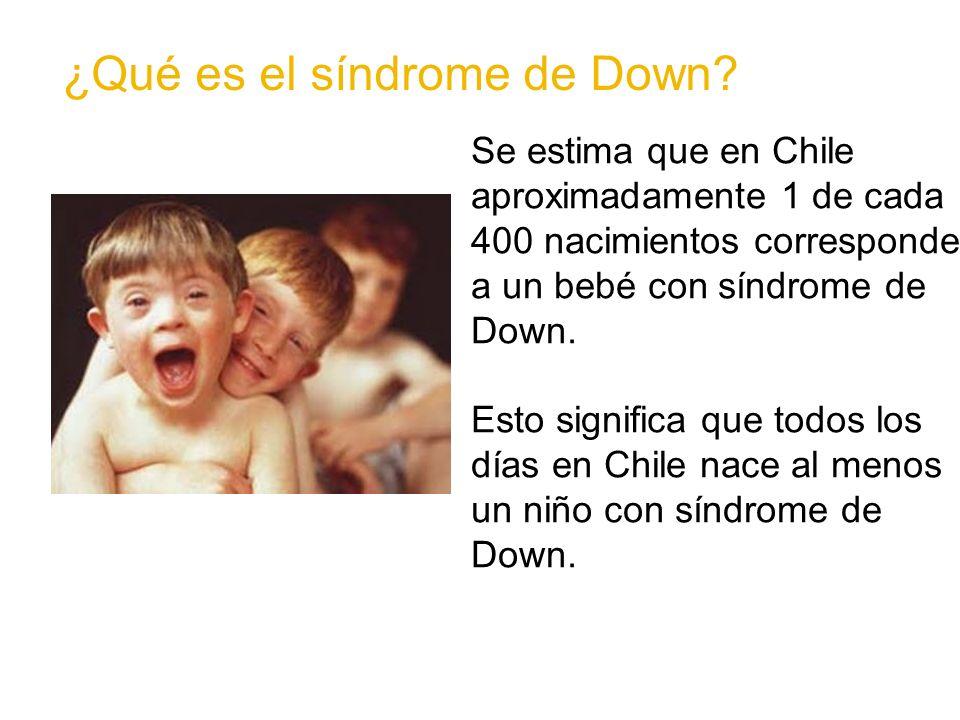 ¿Qué NO es el síndrome de Down.