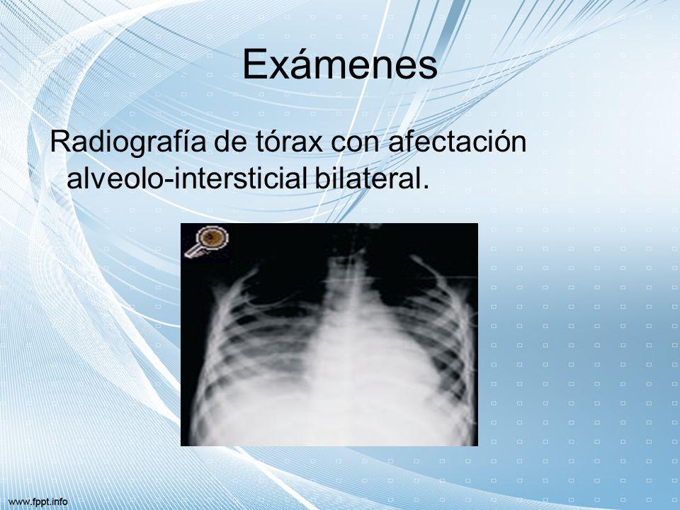 Exámenes Se aisló S. pyogenes serotipo M 1 T 1 en hemocultivo y aspirado bronquial