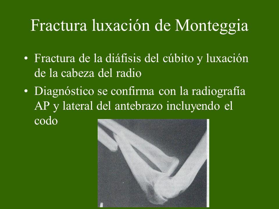 Tratamiento Quirúrgico Reducción abierta más osteosíntesis de la fractura del cúbito con placas y tornillos generalmente la luxación de la cabeza del radio se reduce espontáneamente.