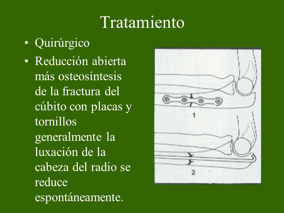 Fractura de la extremidad distal del Radio Frecuente, pacientes mayores, femeninos.