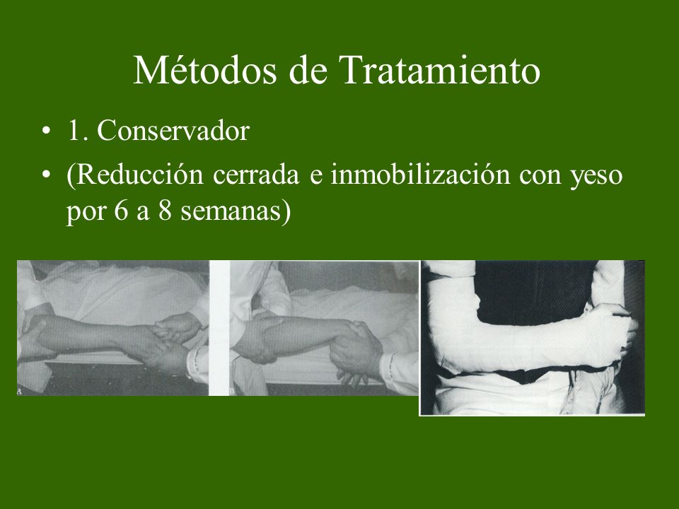 Métodos de Tratamiento 2.Quirúrgico a.