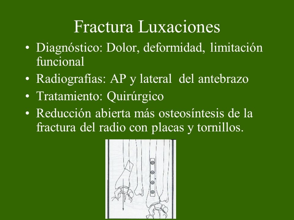 Fractura luxación de Monteggia Fractura de la diáfisis del cúbito y luxación de la cabeza del radio Diagnóstico se confirma con la radiografía AP y lateral del antebrazo incluyendo el codo