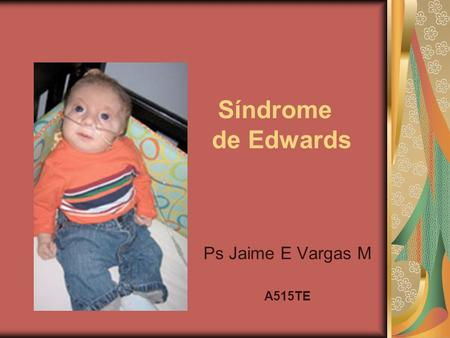 Síndrome de Edwards Ps Jaime E Vargas M A515TE.