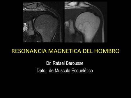 Acercamiento a la Resonancia Magnética estudiando el hombro. Dr. Barousse Rafael.  Magnetic Resonance approach to studying the shoulder.