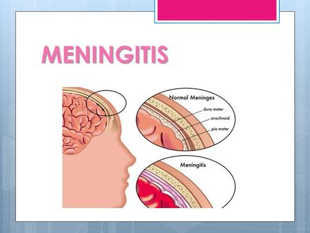 MENINGITIS PEDIATRÍA