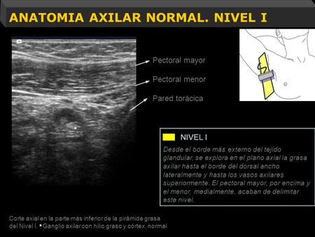 ANATOMIA AXILAR NORMAL. NIVEL I