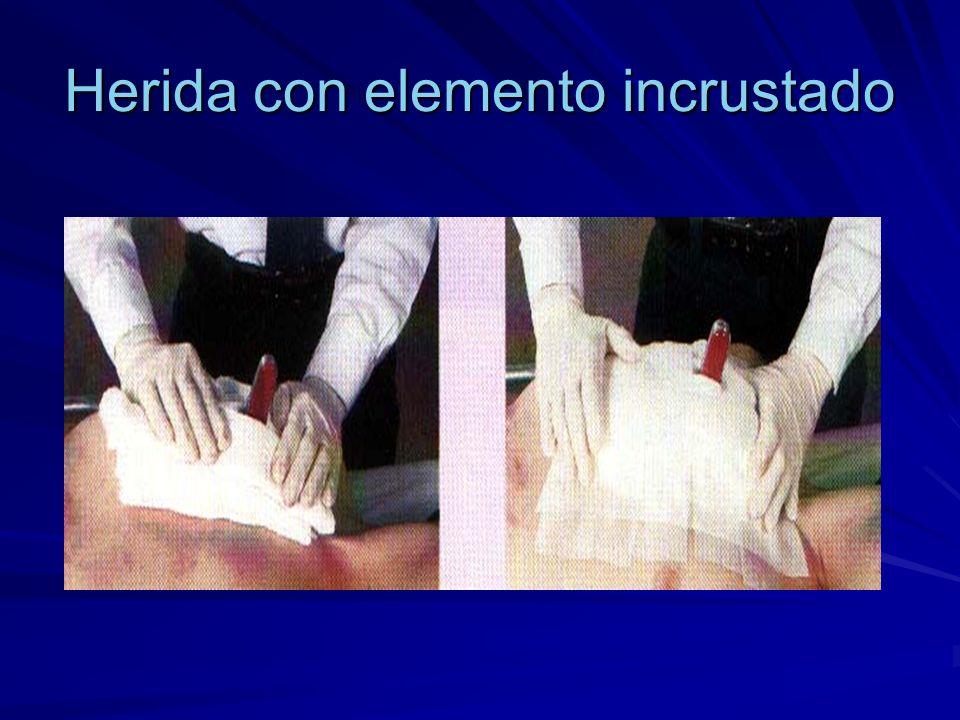 PRIMEROS AUXILIOS EN CIERTAS HERIDAS Heridas en Abdomen.