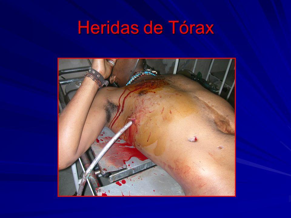 Heridas de Cara y/o Cráneo Es una zona de mucho sangrado y puede haber también perdida de sangre por oído y nariz.