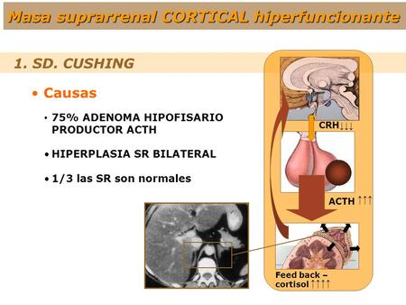 1. SD. CUSHING Causas 75% ADENOMA HIPOFISARIO PRODUCTOR ACTH HIPERPLASIA SR BILATERAL 1/3 las SR son normales ↑↑↑ ↑↑↑↑ CRH ↓↓↓ Feed back – cortisol ACTH.