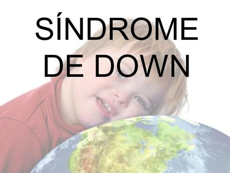 SÍNDROME DE DOWN.