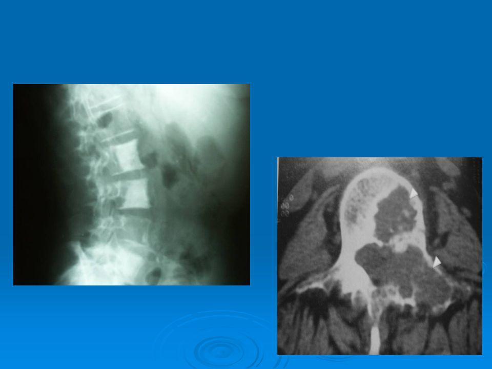 Evaluacion.Dolor de espalda Dolor de espalda Datos de Mielopatia.