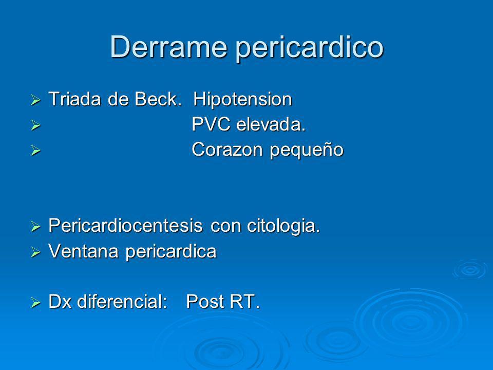 Sindrome de Vena Cava superior Ca de Pulmon Ca de Pulmon Linfoma No Hodgkin Linfoma No Hodgkin Tumores de celulas Germinales.