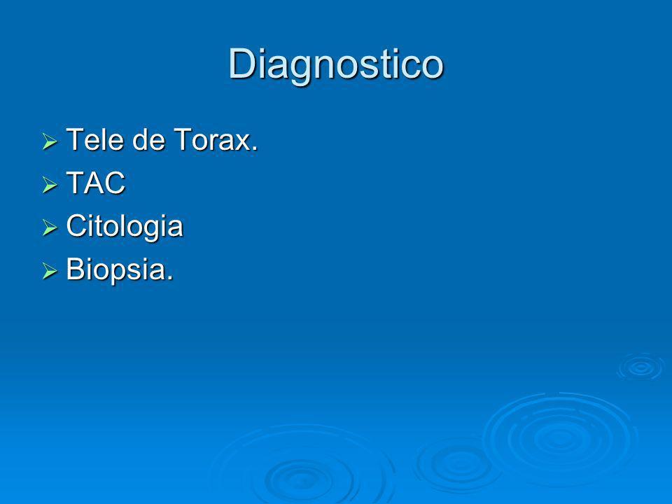 Tratamiento Quimioterapia Linfoma y Celulas Germinales.