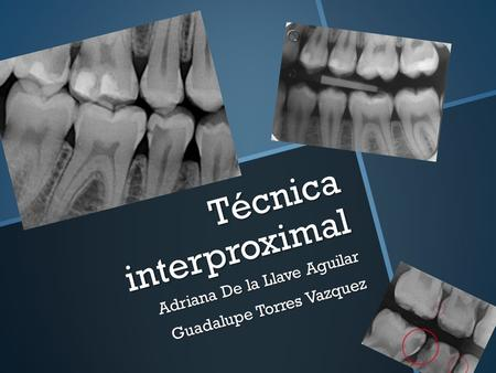 Técnica interproximal
