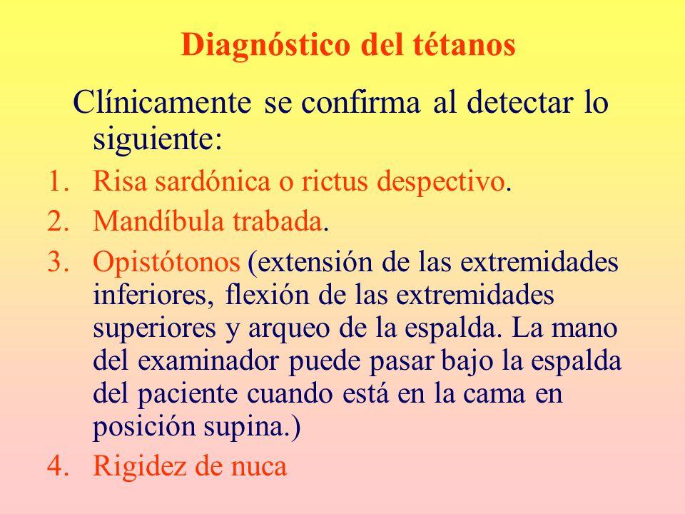 Diagnóstico del tétanos