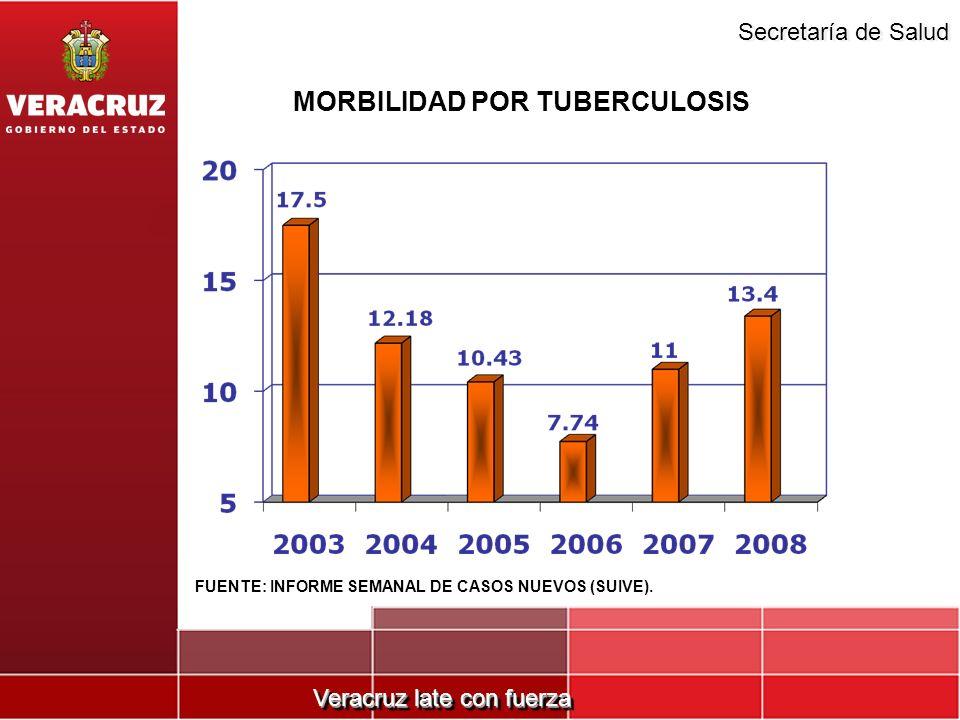 MORBILIDAD POR TUBERCULOSIS