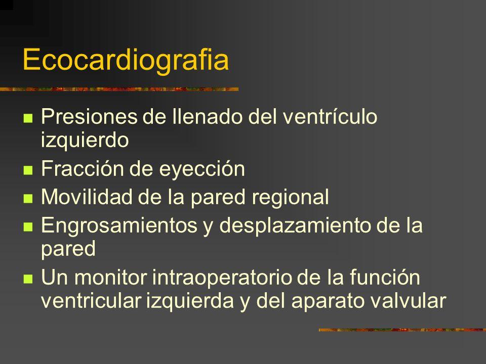Ecocardiografia Presiones de llenado del ventrículo izquierdo
