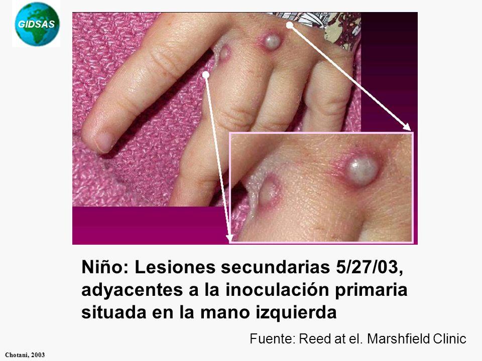 Niño: Lesiones secundarias 5/27/03, adyacentes a la inoculación primaria situada en la mano izquierda