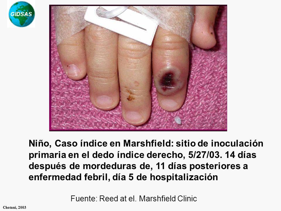 Niño, Caso índice en Marshfield: sitio de inoculación primaria en el dedo índice derecho, 5/27/03. 14 días después de mordeduras de, 11 días posteriores a enfermedad febril, día 5 de hospitalización