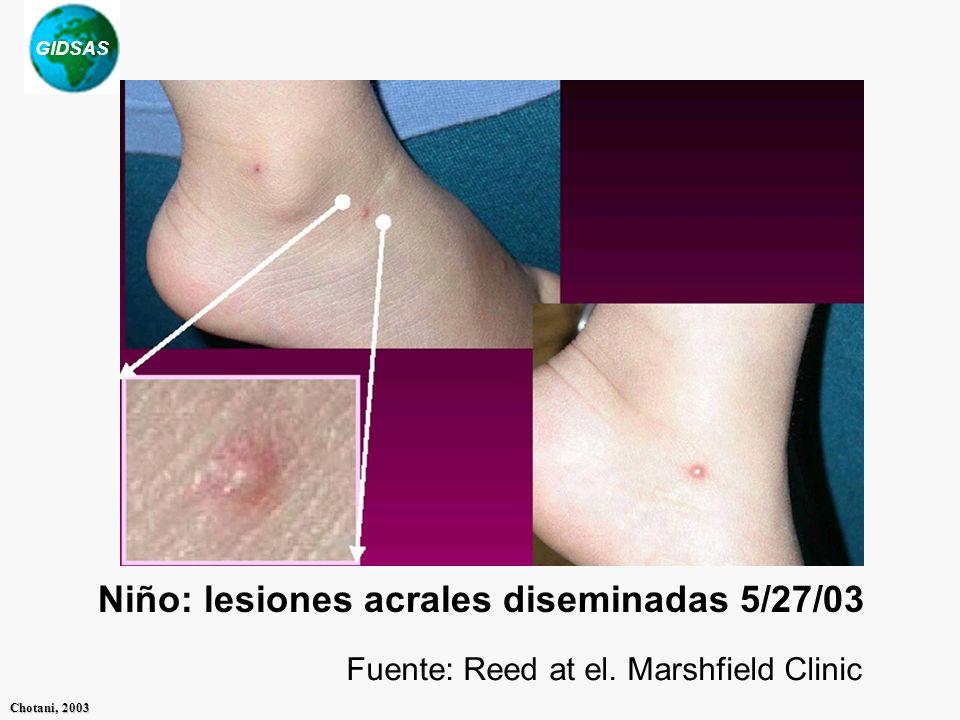 Niño: lesiones acrales diseminadas 5/27/03