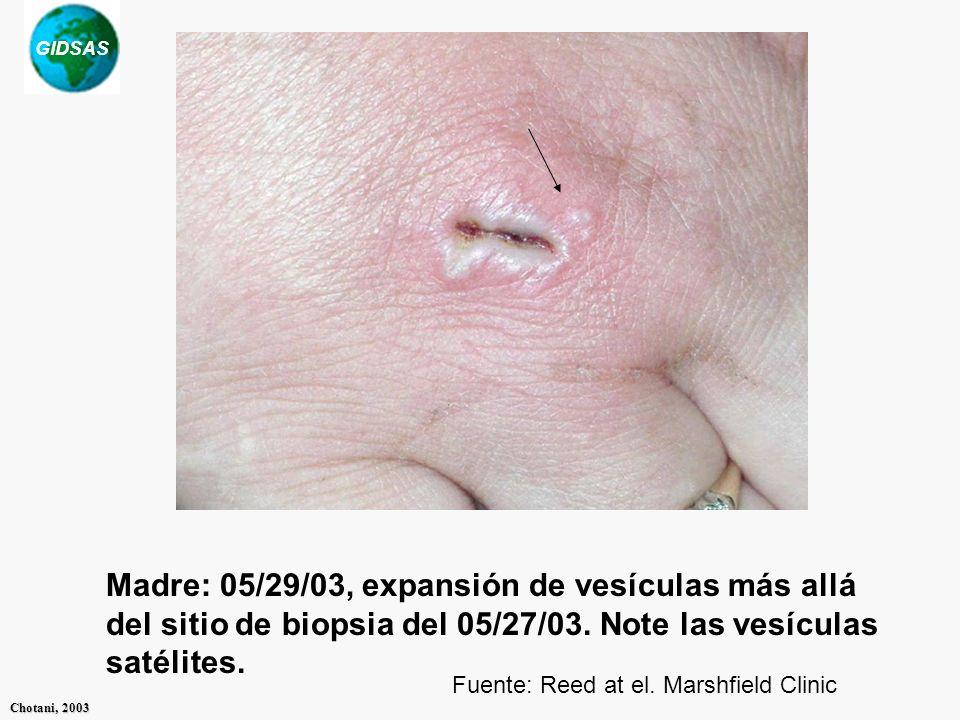 Madre: 05/29/03, expansión de vesículas más allá del sitio de biopsia del 05/27/03. Note las vesículas satélites.