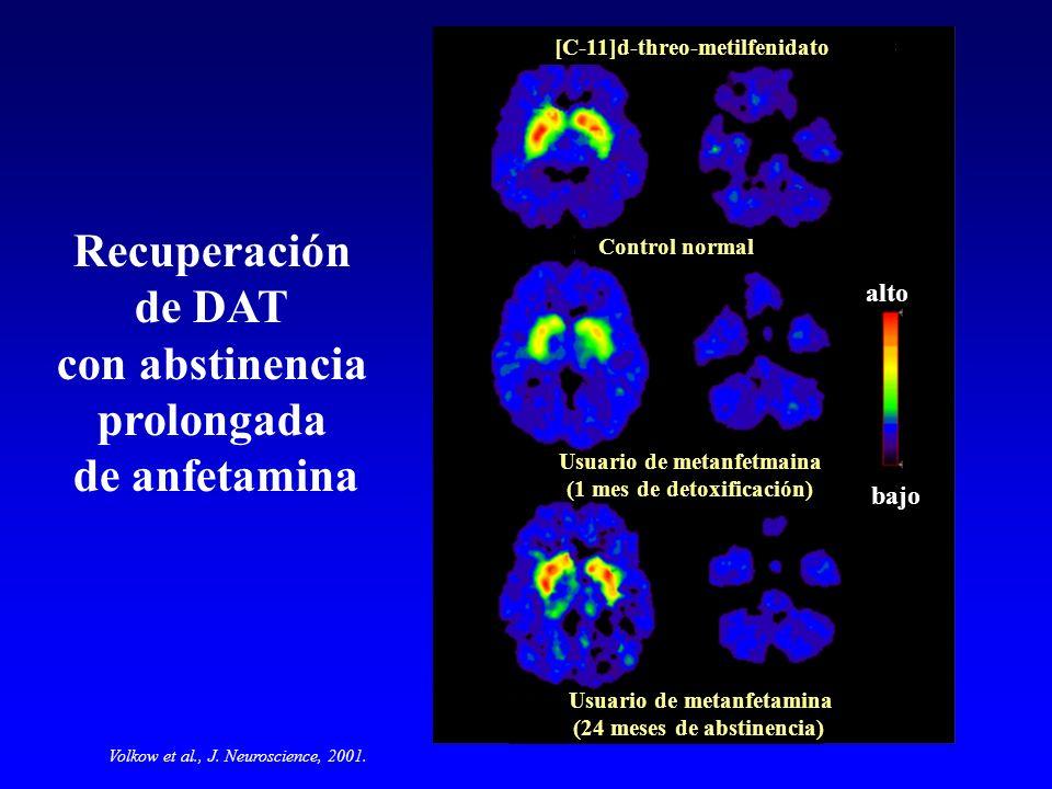 Recuperación de DAT con abstinencia prolongada de anfetamina
