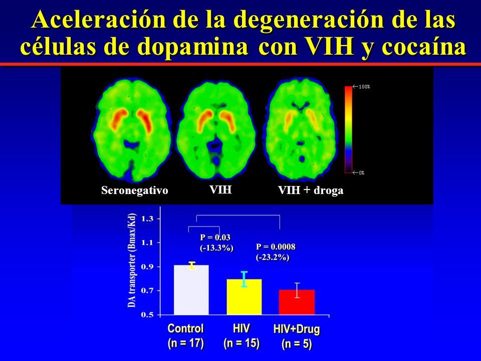 Aceleración de la degeneración de las células de dopamina con VIH y cocaína