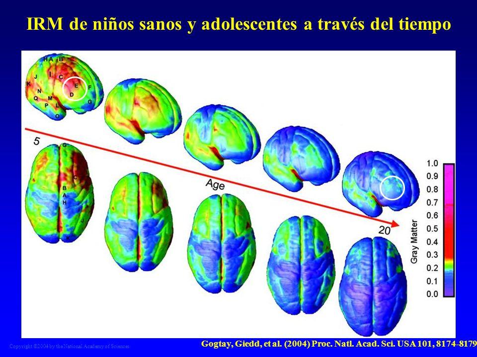 IRM de niños sanos y adolescentes a través del tiempo