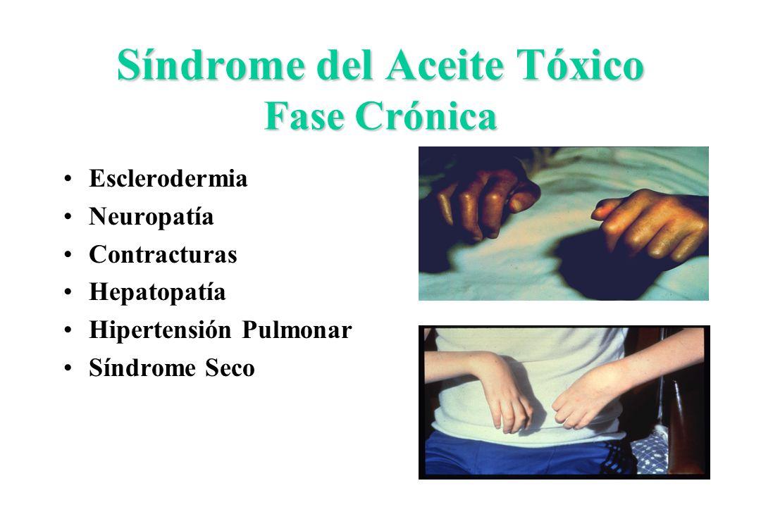 Síndrome del Aceite Tóxico Fase Crónica