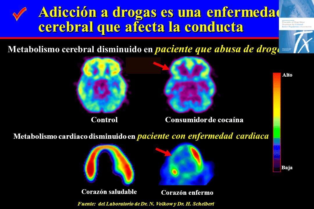Metabolismo cerebral disminuido en paciente que abusa de drogas