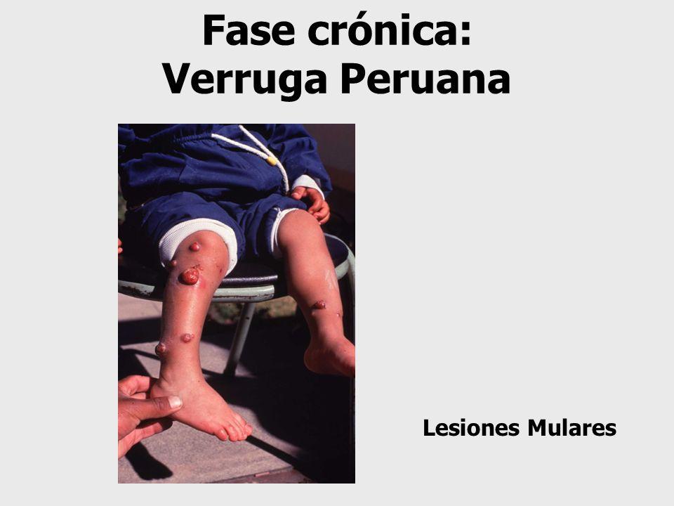 Fase crónica: Verruga Peruana