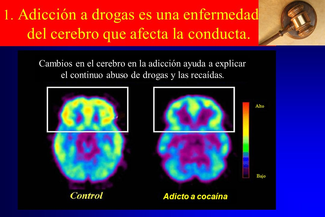 1. Adicción a drogas es una enfermedad del cerebro que afecta la conducta.