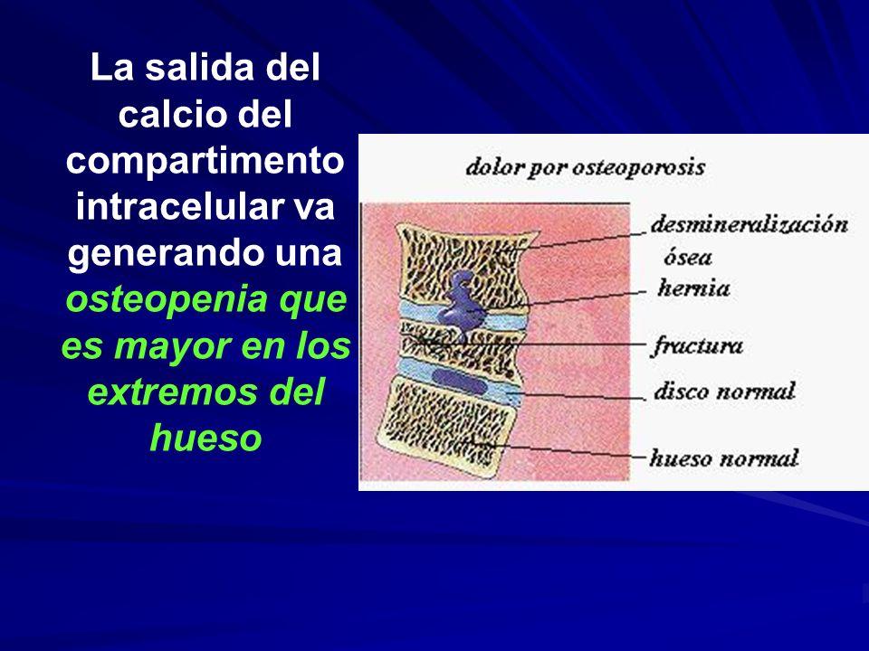 La salida del calcio del compartimento intracelular va generando una osteopenia que es mayor en los extremos del hueso