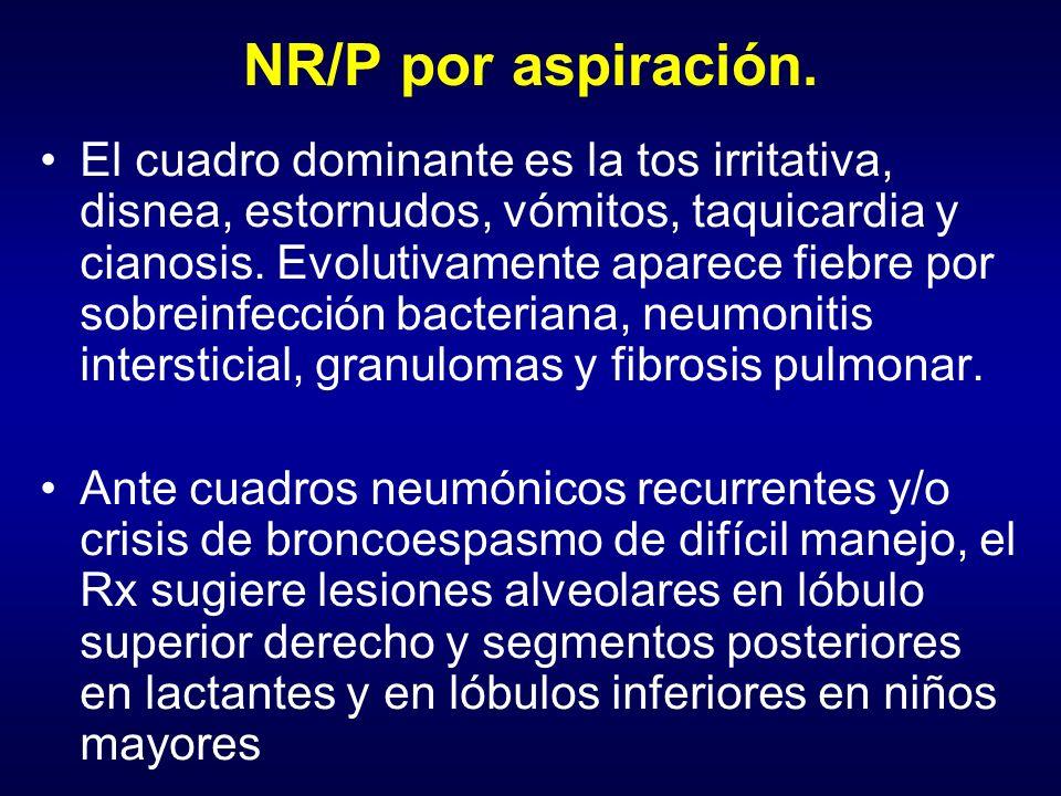 NR/P por aspiración.