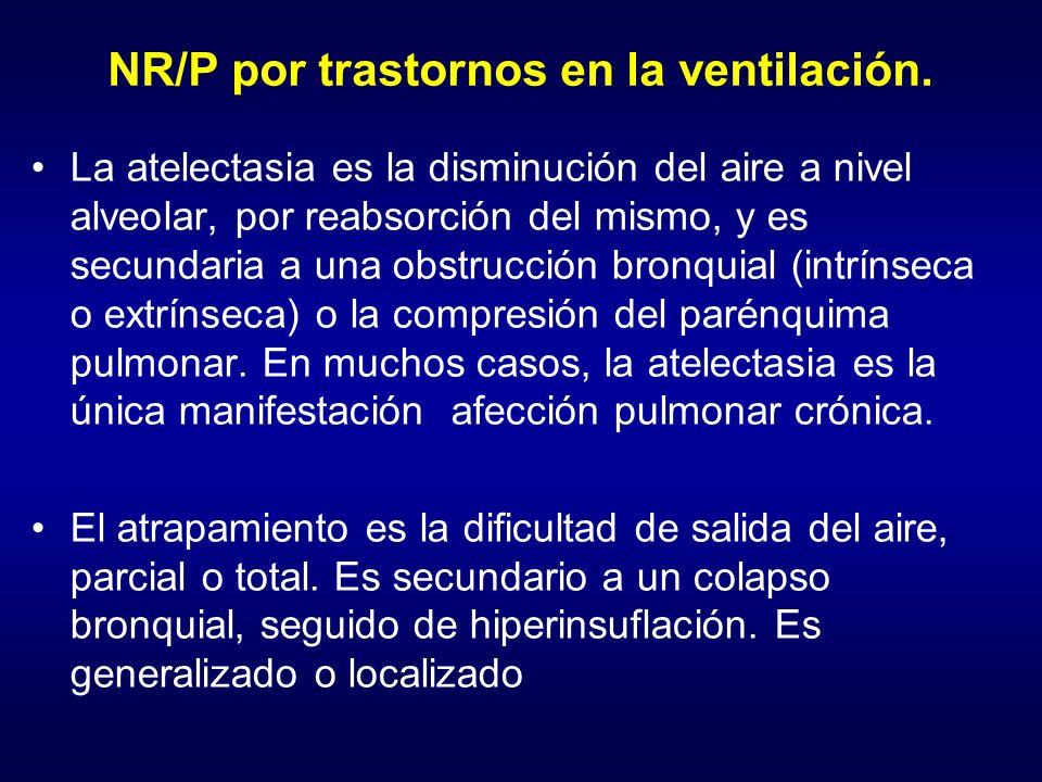 NR/P por trastornos en la ventilación.