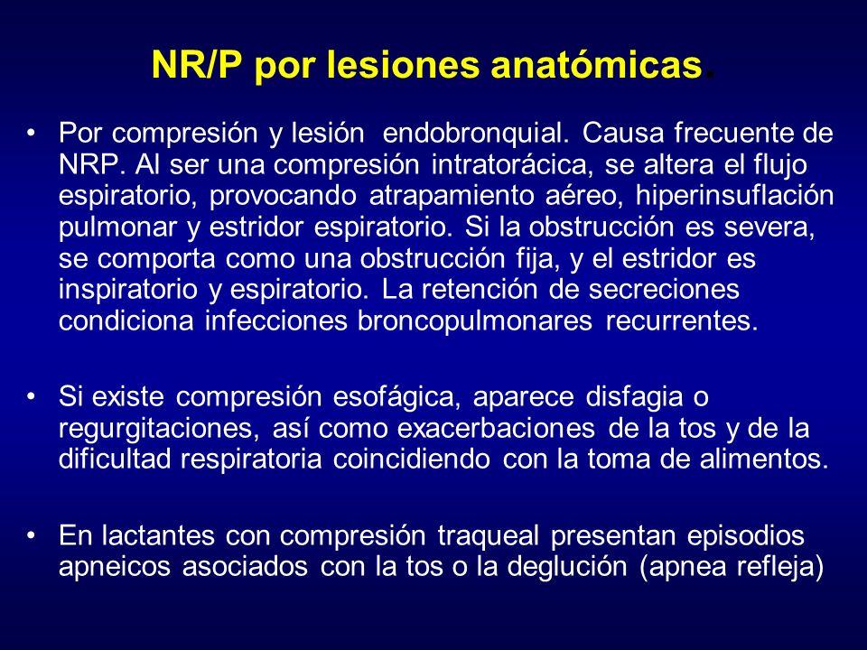NR/P por lesiones anatómicas.