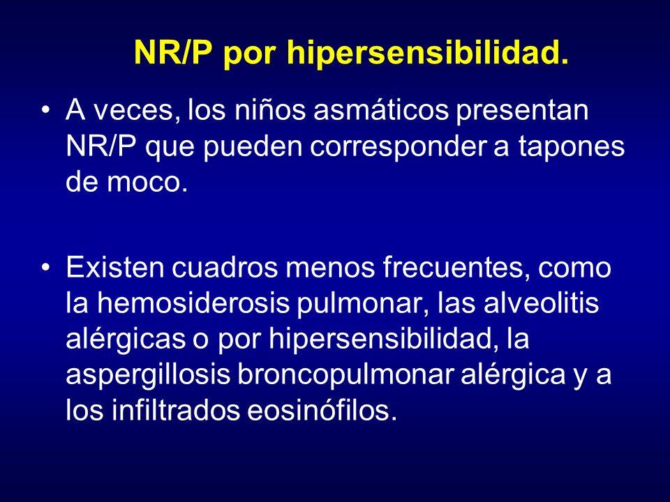 NR/P por hipersensibilidad.