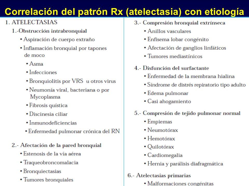 Correlación del patrón Rx (atelectasia) con etiología